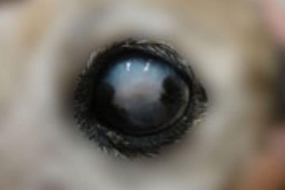 義眼挿入手術後