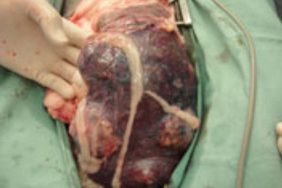 開腹時の脾臓